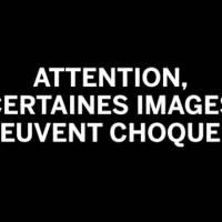 Attentats à Paris : Un journaliste blessé du