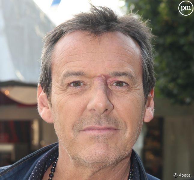 Jean-Luc Reichmann pas tendre avec l'ex-animateur des Z'amours — Tex viré